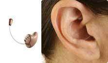 Appareil auditif intra à microphone Externe